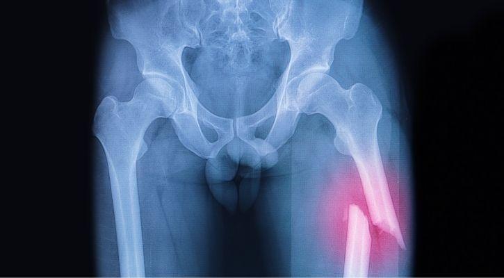 vegan diet bone health