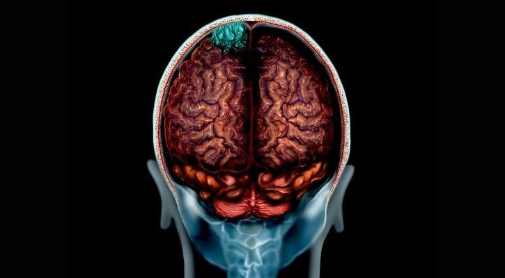 brain cells after death