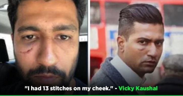 The Scar On Vicky Kaushal