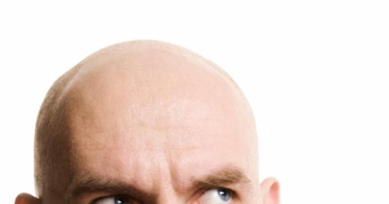 Does Hair Weaving Really Cure Baldness Indiatimes