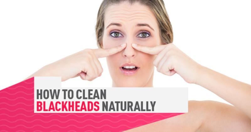 10 Really Effective Ways To Get Rid Of Blackheads On Your