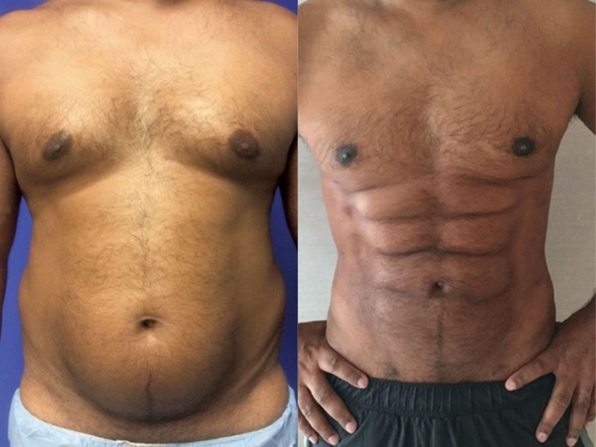 belly fat:Doctors Can Turn Your Belly Fat Into Six-Pack Abs