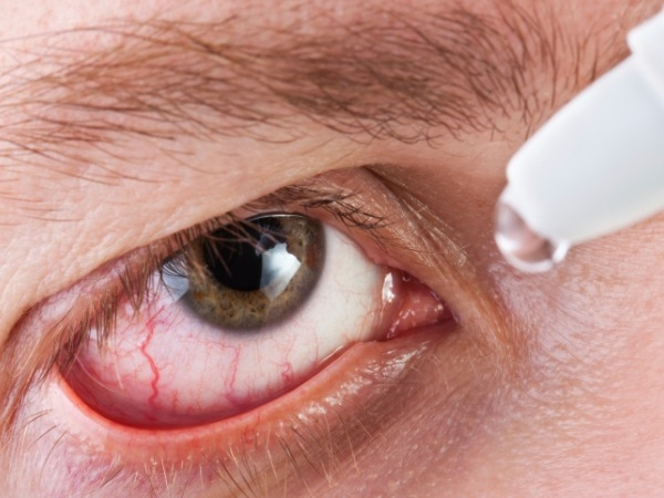 How To Prevent Conjunctivitis This Monsoon