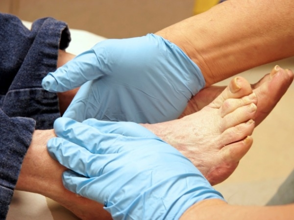 How To Prevent Diabetes-Related Foot Problems