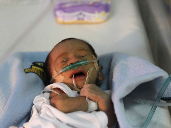 Prevent Pneumonia To Lower Infant Mortality Rate: India