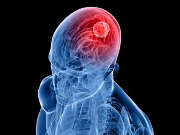 Folic Acid Halves Brain Tumour Risk