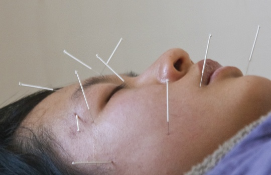 Science Behind Acupuncture Revealed