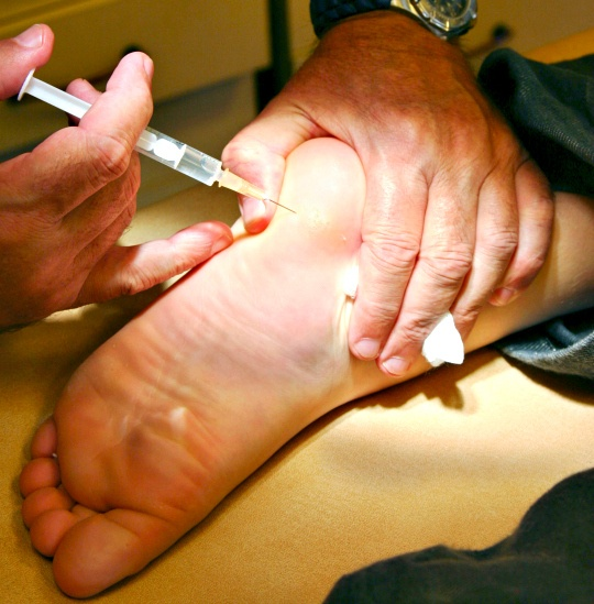 Now, Botox for Your Feet!