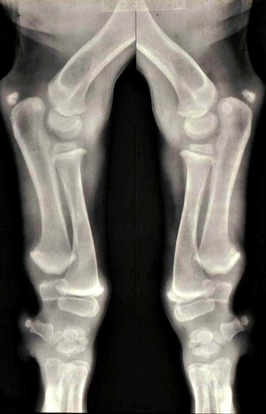 New Treatment Found for Brittle Bone Disease