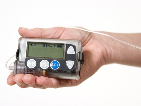 Diabetes Treatment: Pros And Cons Of Insulin Pumps