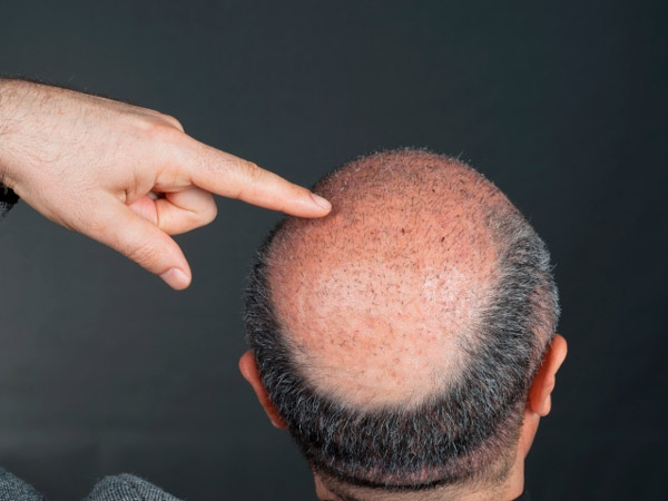 All You Need To Know About Hair Transplant Procedures