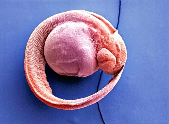 Zebrafish Stem Cells Could Heal Human Retinas