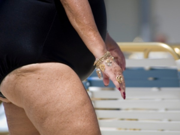 Why Fat Thighs Are Better Than Big Paunch
