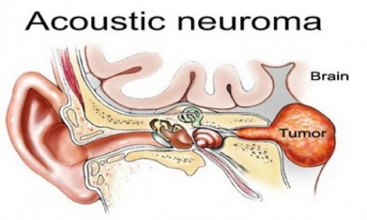 What Is Acoustic Neuroma, Causes And Treament