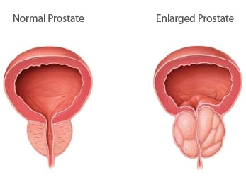 Enlarged Prostate: Causes, Symptoms And Treatment