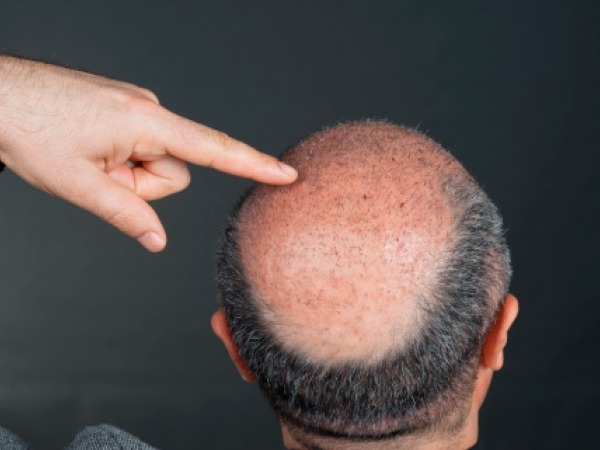 Hair Care: Hair Treatments To Fight Baldness In Men