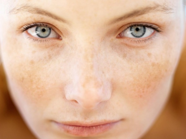 Skin Conditions: What Is Melasma?