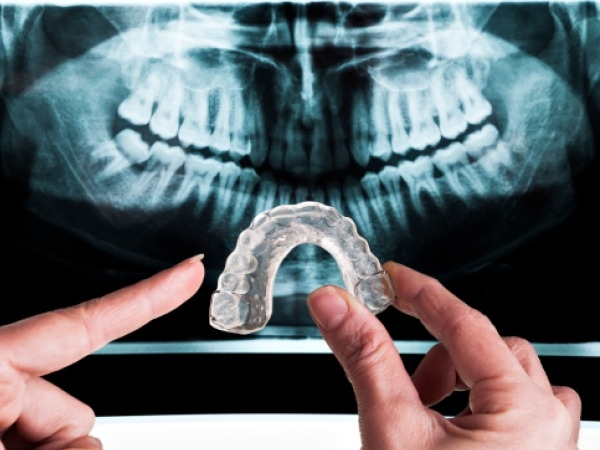 Dental Care: What Is Bruxism, Causes, Symptoms And Treatment