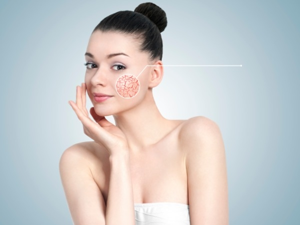 You Ask, We Answer: How To Banish Of Acne Marks?