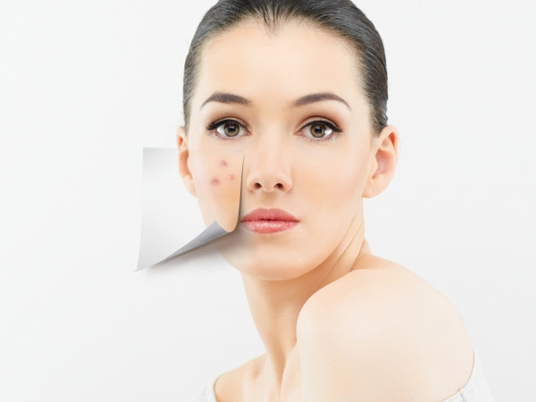 Adult Acne: Causes And Treatments
