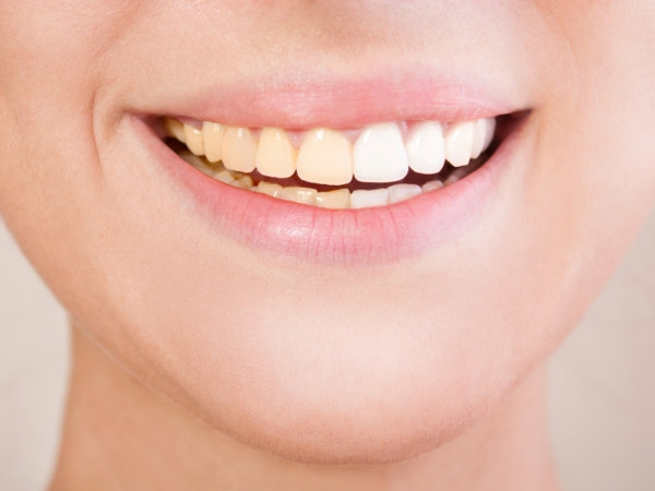 Dental Health: Foods That Cause Tooth Discolouration