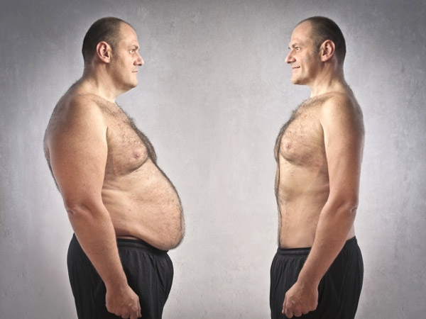 Bariatric Surgery: Things You Must Know