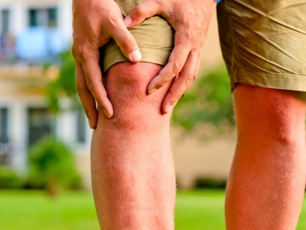Arthritis: Exercise For People With Arthritis