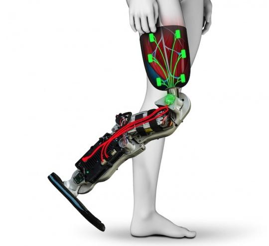 Computer-controlled Bionic Leg
