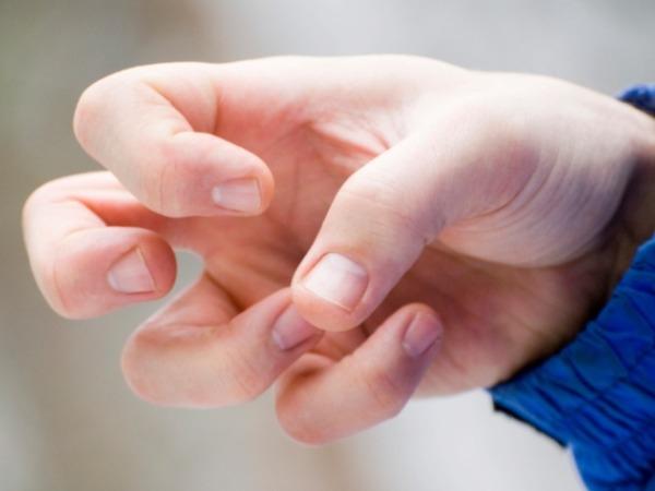 Epilepsy Symptoms And Ways To Control Seizures