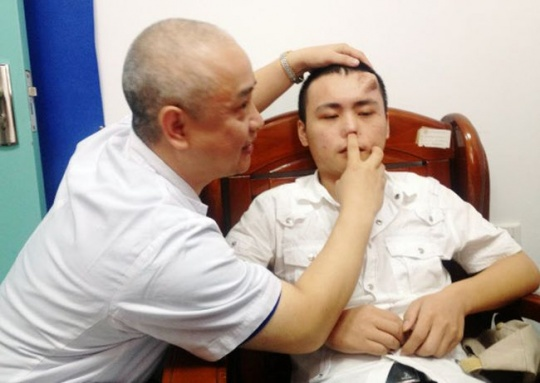 Chinese Man Grows Nose on Forehead