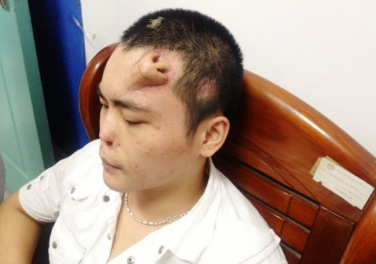 A new nose, grown by surgeons on Xiaolian's forehead, is pictured before being transplanted to replace the original nose