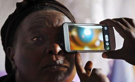 Smartphone and Eye