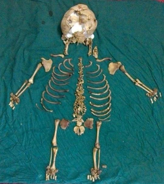 foetus Skeleton