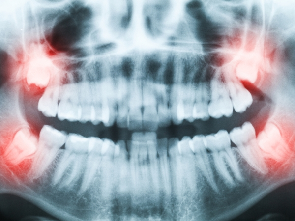 Learn All About Your Wisdom Teeth