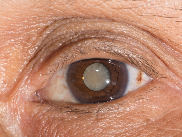 Cataracts: What You Should Know