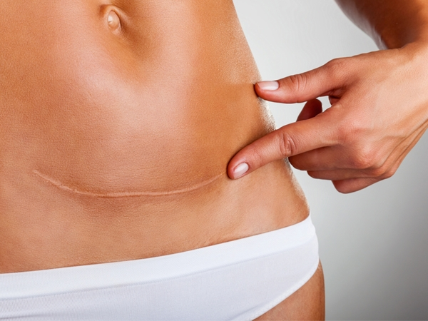How To Treat Your C-Section Scars At Home