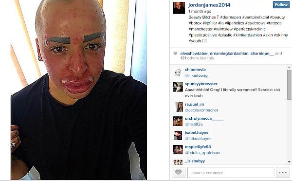 Jordan James Parke vampire facial