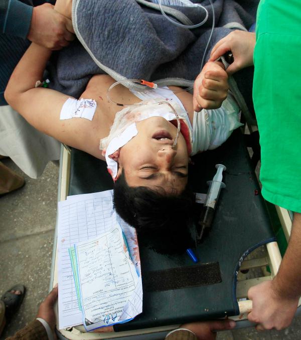 injured kid peshawar