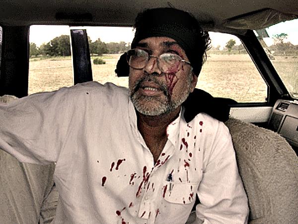 injured kailash satyarthi