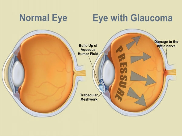 Eye Health: What Is Glaucoma