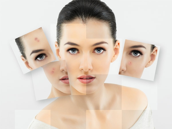Acne: What Does Your Acne Say About Your Health?