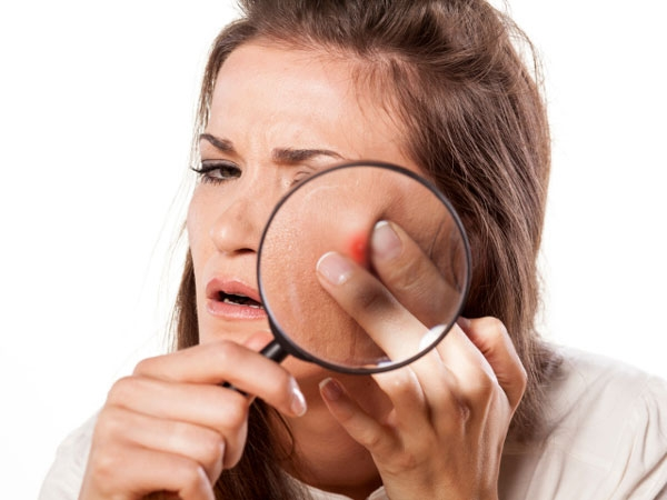 Most Ridiculous Acne Myths Debunked