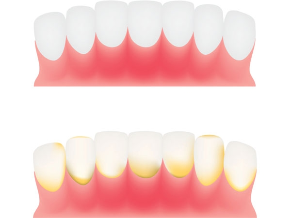 5 Amazing Tips For Plaque Free Teeth