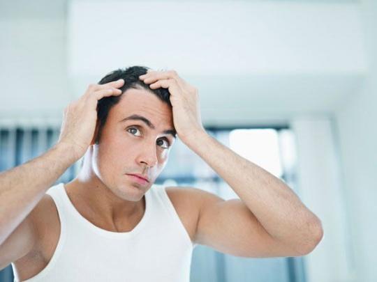 Major Hair Issues Men Face