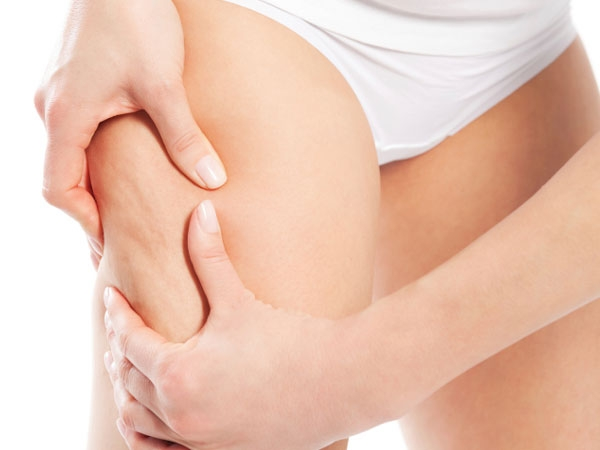 Remedies To Get Rid Of Cellulite On Thighs
