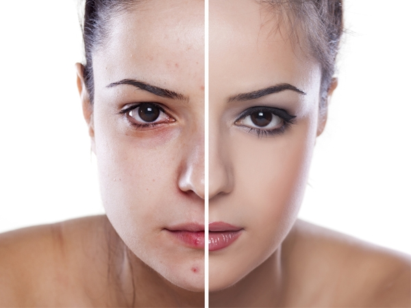 Beauty Tips To Combat Signs Of Allergies
