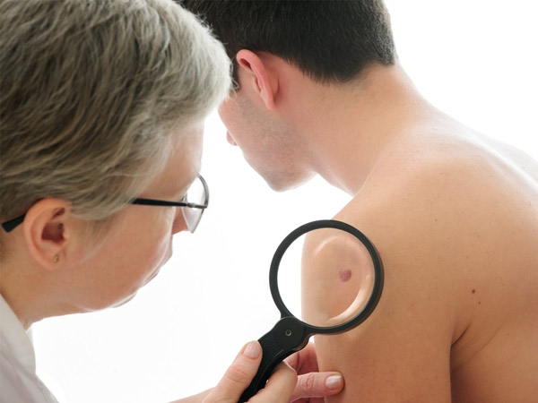 How Sun Exposure Causes Skin Cancer