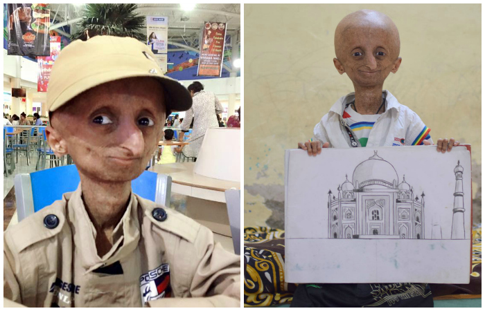 He Suffers From Progeria And Won