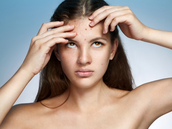Unusual Treatments For Acne Scars