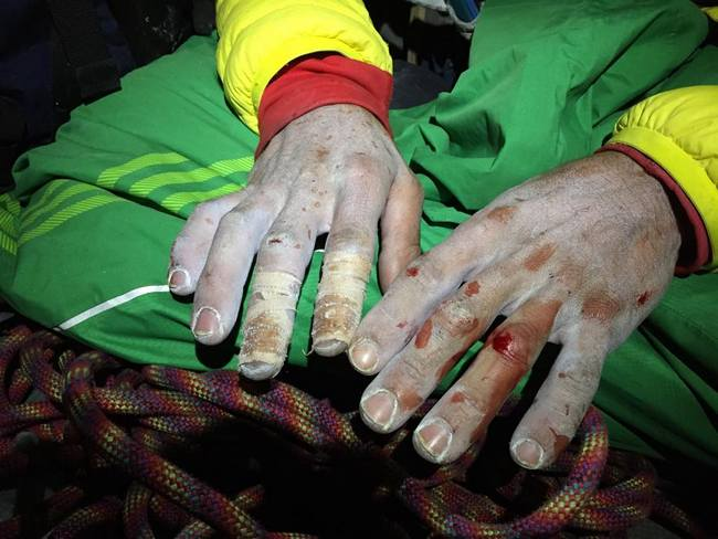 Kevin Jorgeson fingers